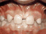 Missing lateral incisors