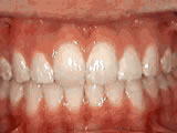 Overjet - Protruding front teeth